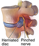illustrated example of a pinched back nerve
